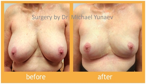 What Can Plastic Surgery Do For Your Breasts