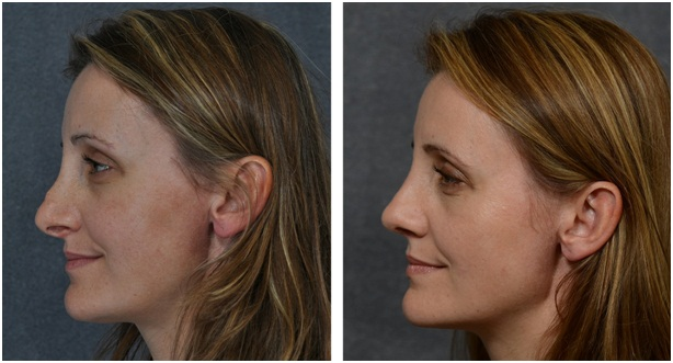 A Good Rhinoplasty Can Make A Big Difference