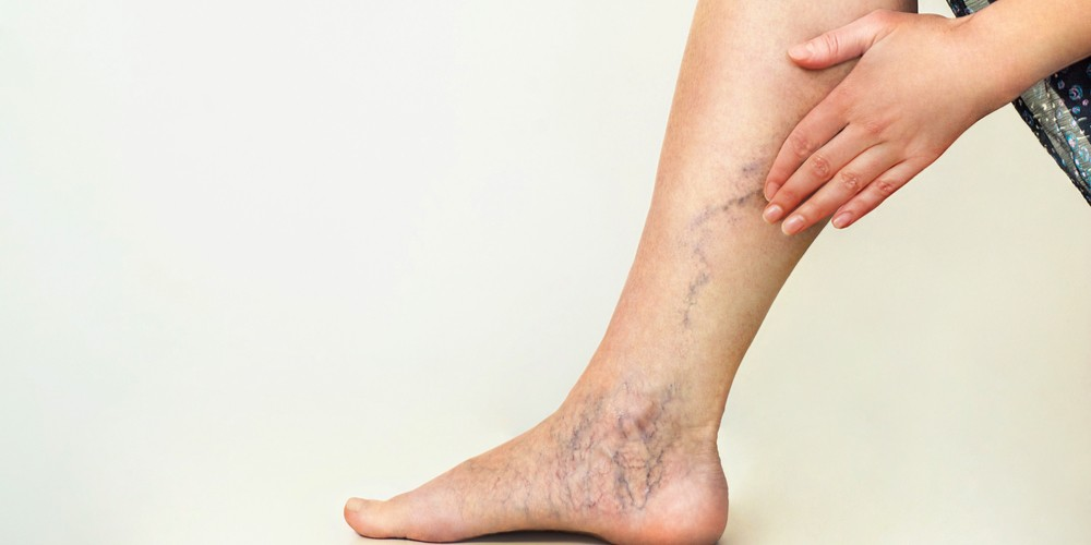 Varicose And Spider Veins Are Problems No Longer With Modern Treatments
