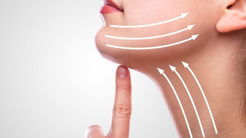 How to Know If You Are the Right Candidate for A Facelift?