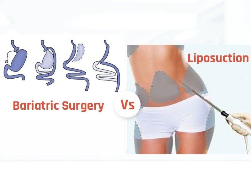 Liposuction vs. Bariatric Surgery