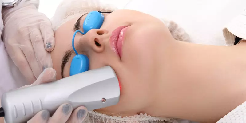 Derma Roller for Face Acne Scars- Get the Scar free Skin