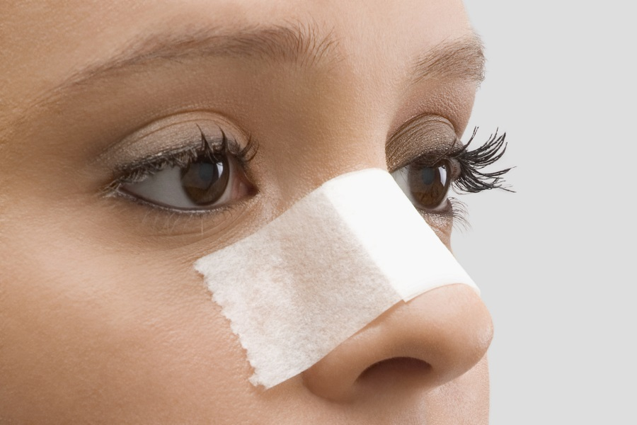 WHAT NOT TO DO AFTER NOSE SURGERY?